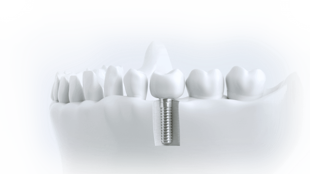 Zahnimplantat mit Knochenstruktur